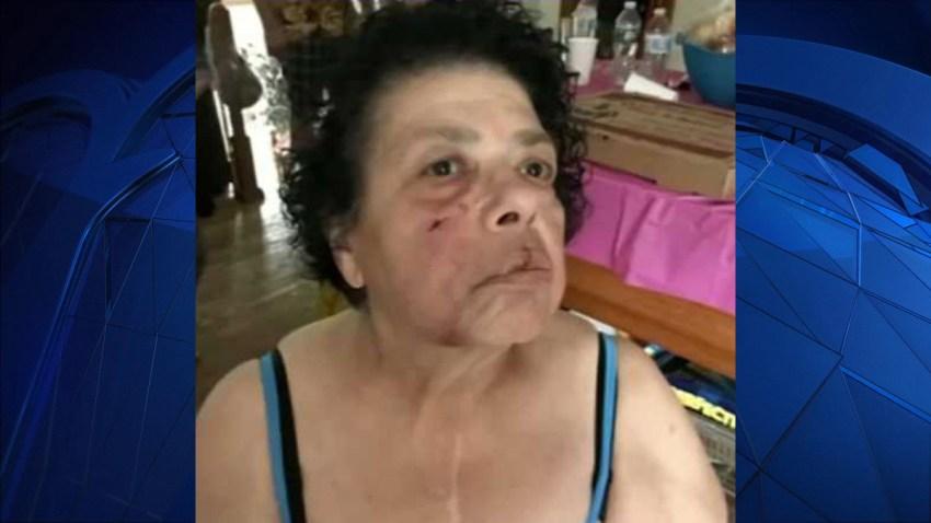 Margie dog attack victim Warwick