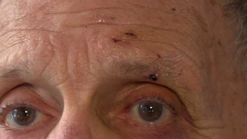 Elderly Maine Man Attacked by Rabid Fox — His 2nd Rabid Animal Encounter in 4 Months