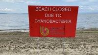 Following Beach Closures, Vt. Health Officials Urge Awareness of Cyanobacteria