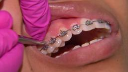 Dentists Offer Fast Braces