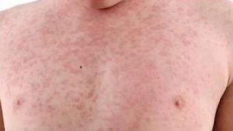 Sudden Surge in the Measles Outbreak