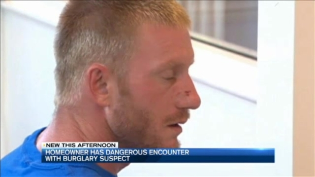 [NECN] Homeowner Dragged by Suspected Burglar's Vehicle