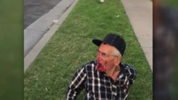[NATL-LA] Elderly Man Beaten, Bloodied on July Fourth