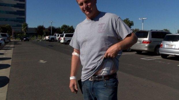 Merced Stabbing Survivor Describes Attack