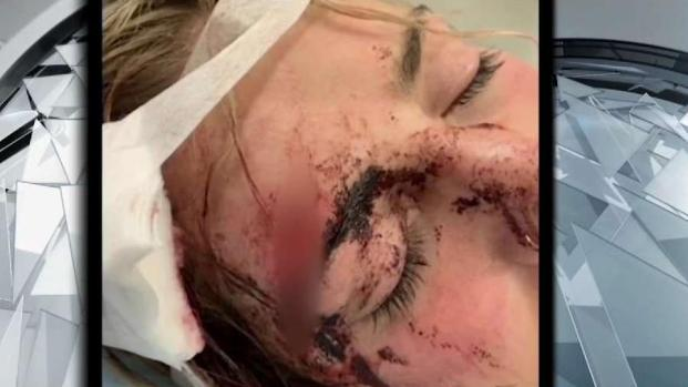 [NECN] Woman Speaks Out After Beating in Salem