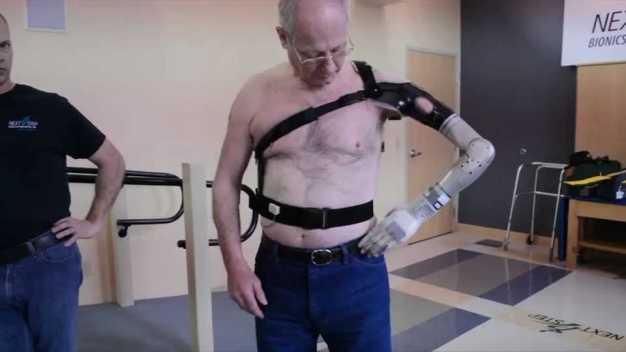 Next Step Bionics & Prosthetics
