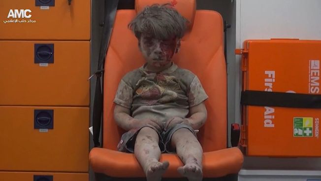 Haunting Image of Syrian Boy Rescued From Aleppo Rubble