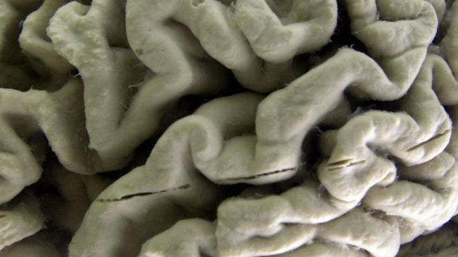 Promising Alzheimer's Drug Doesn't Help Dementia Patients