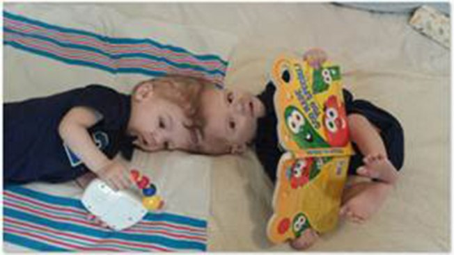 Conjoined Twins Separated After 20-Hour Surgery at NYC Hospital
