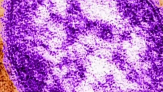 Officials Warn of Possible Measles Exposures in Greater Boston