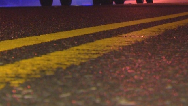67-Year-Old Pedestrian Seriously Injured