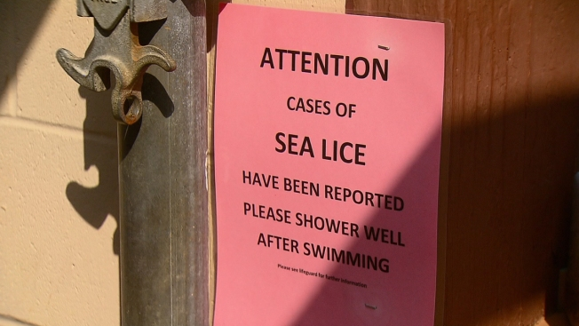 Reports of Sea Lice at Connecticut Beaches