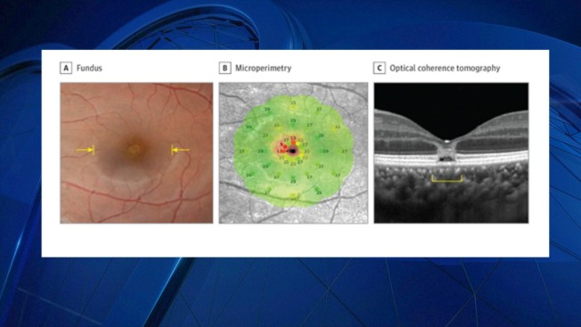 Images Reveal Woman's Eye Damage From Staring at Solar Eclipse