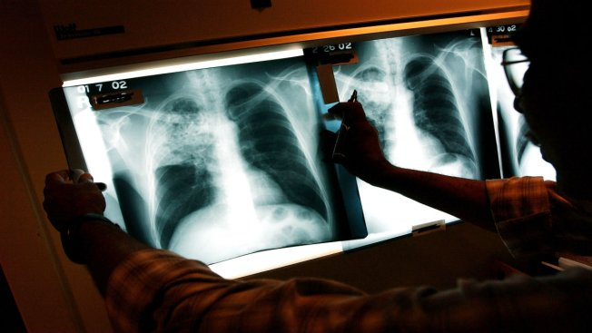 Tuberculosis Confirmed in School Employee