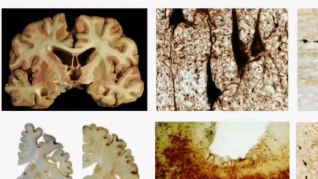 Research provides new insight into head hits, CTE
